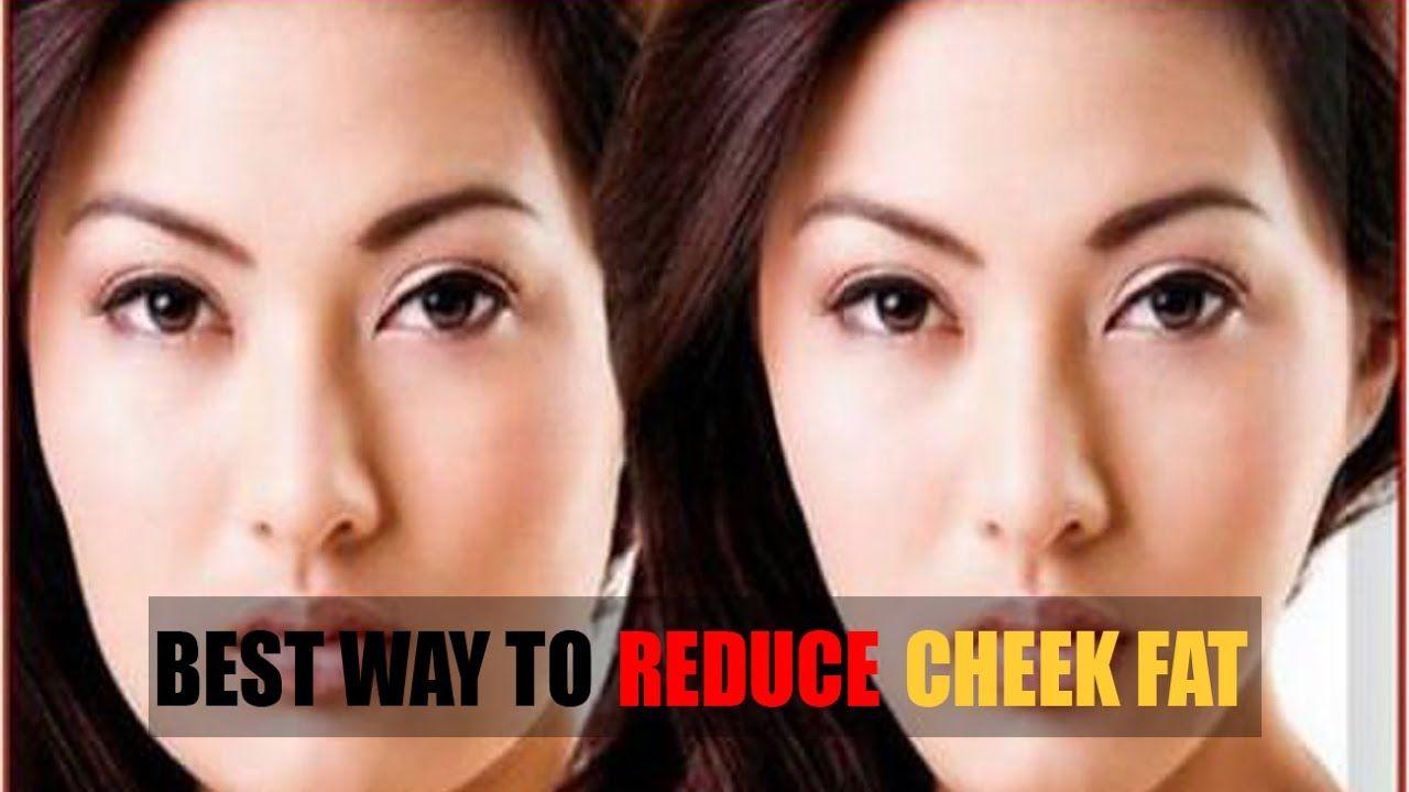 Reduce Fatty Face