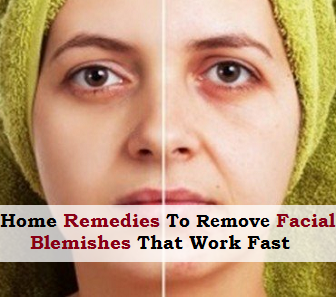 Useful removing facial blemishes