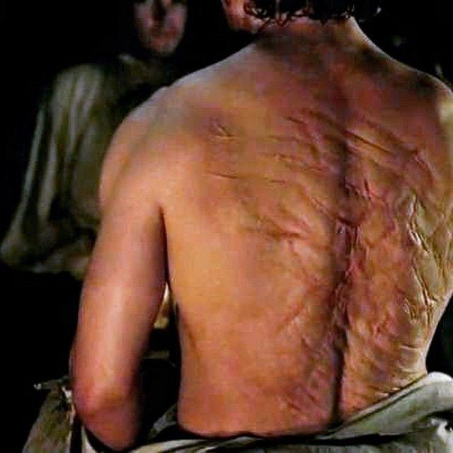 Jamie Fraser's scarred back | Outlander Starz