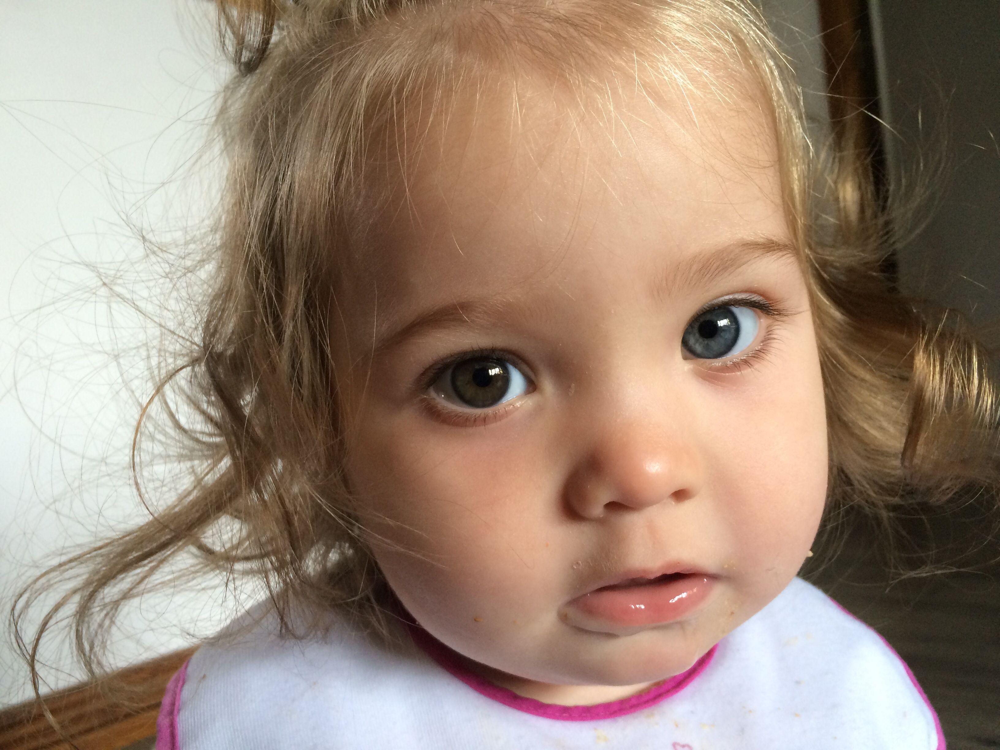 Heterochromia of the eye (heterochromia iridis or ...  Heterochromia o...