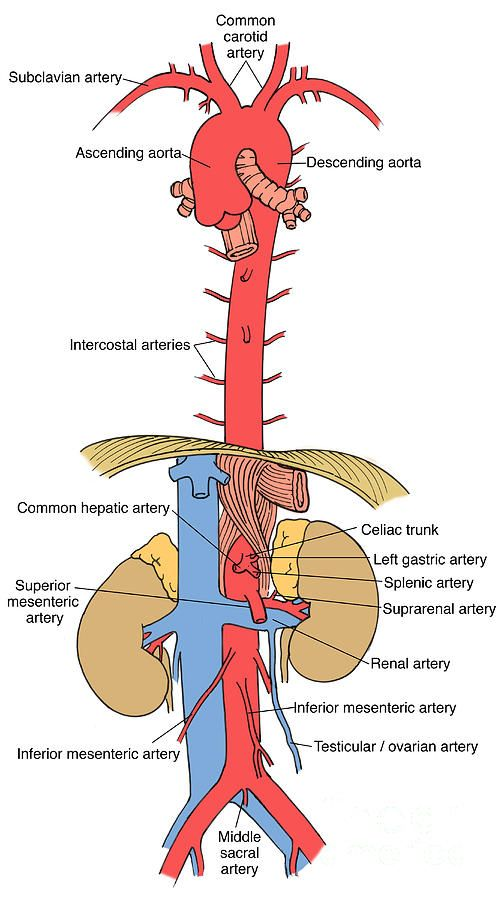 Pin By Vascular Compression Syndromes Awareness Foundation On