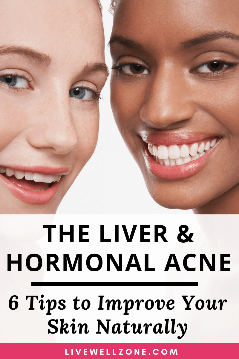 An additional hormonal acne treatment includes eating products without hormones as an illustration cow milk items. Cow milk in the supermarket could r...