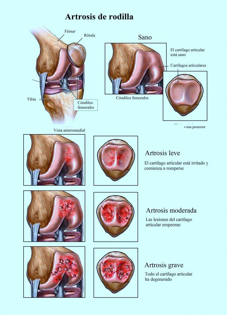 El Dolor De Rodilla Puede Estar Causado Por Una Lesión Como Por Ejemplo La Rotura De Un Li Ligamentos De La Rodilla Dolor En La Rodilla Anatomía De La Rodilla
