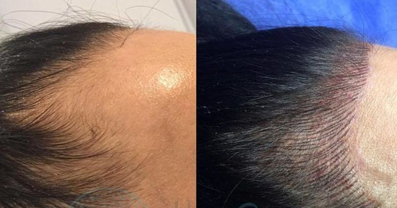 Got A Receding Hairline? These Tattoos Are Giving Women Their Groove Back |  Hairline tattoos, Hairline, Tattoos