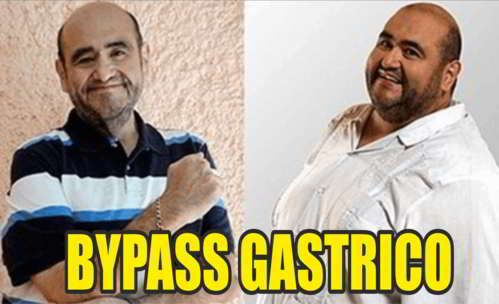 18 Ideas De Baypass Gas Bypass Gástrico Cirugia Bariatrica Te Para Bajar De Peso
