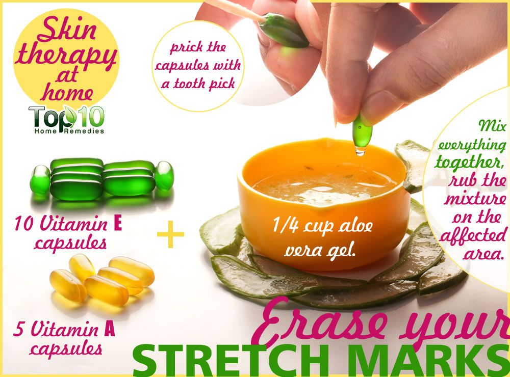 stretch marks homemade remedies - Ataum berglauf-verband com