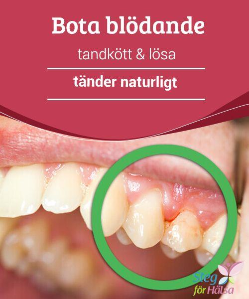 blödande tandkött symptom