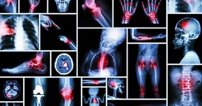 I dolori, principalmente muscolari e alle articolazioni, elencati di seguito sono, come ogni altro sintomo fisico, connessi ad una situazione dolorosa ment
