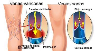 remedios naturales para hemorroides fisuras anales
