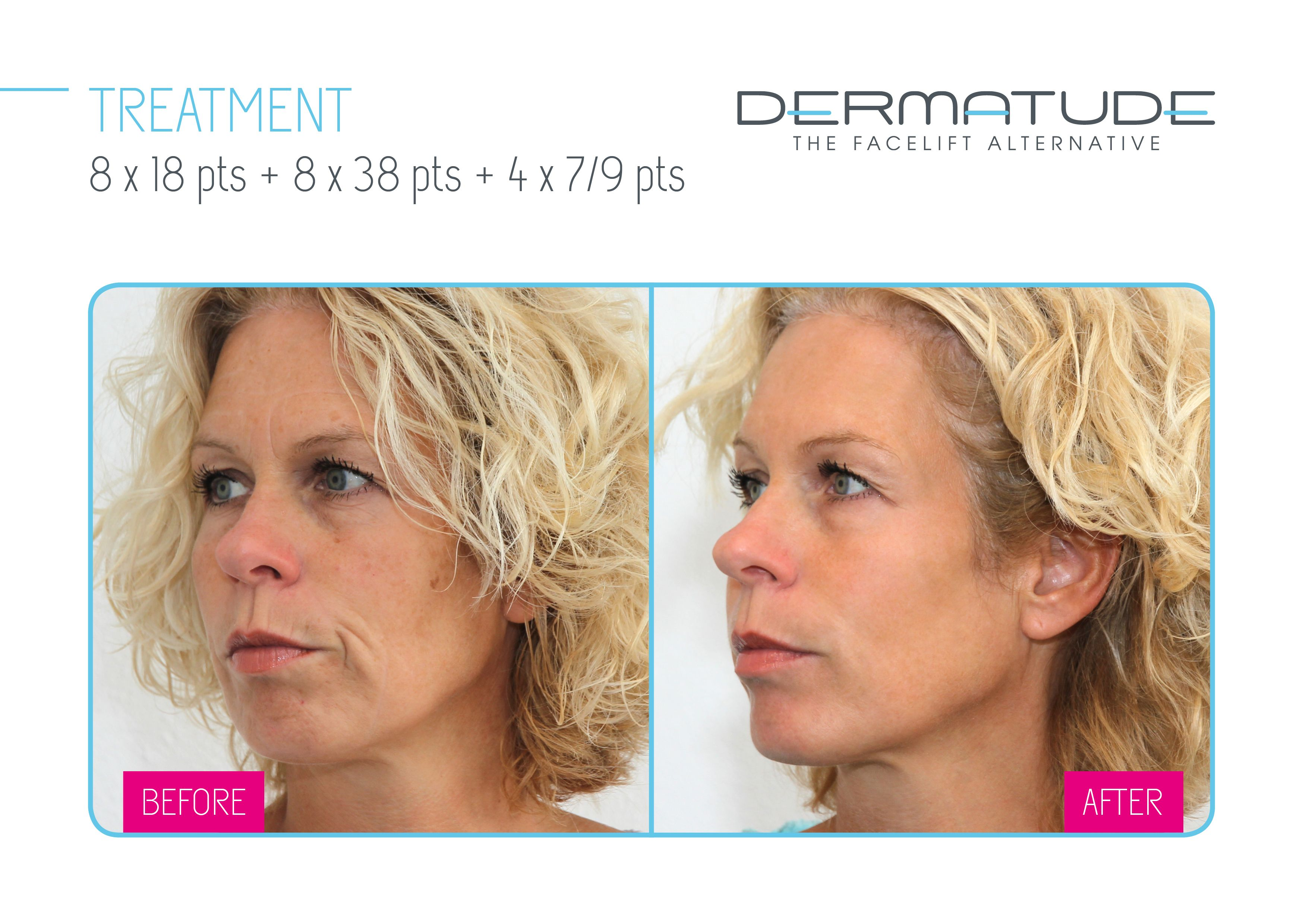 The Facelift Alternative Anti Aging Treatments Treatment Facelift
