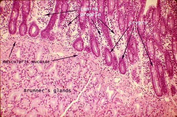 Histology - Small Intestine - Brunner's Glands of Duodenum ...