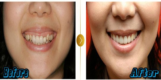South Korean Plastic Surgery Cost And Procedures Cosmetic Dental Surgery Dental Cosmetics Dental Surgery