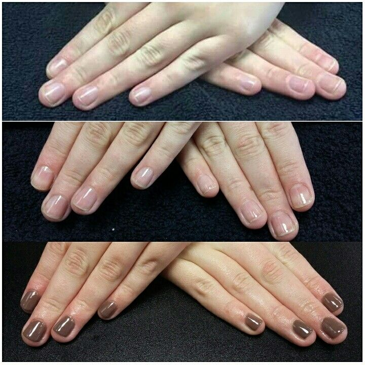 A nail biters progress over 3 weeks....in much better condition that ...