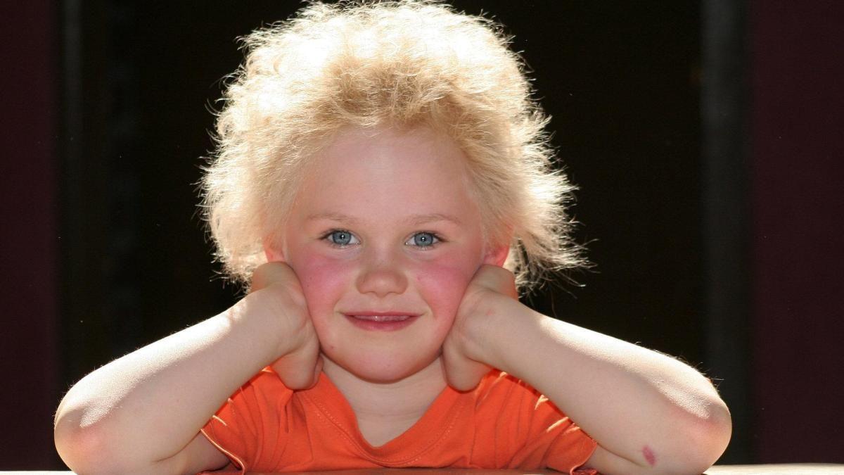 #Unkämmbare Haare: Woher das Struwwelpeter-Syndrom kommt - DIE WELT: DIE WELT Unkämmbare Haare: Woher das Struwwelpeter-Syndrom kommt DIE…