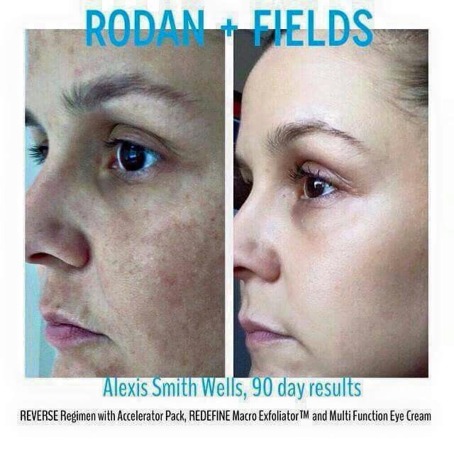 This is the regimen I use and LOVE... The Reverse regimen. It reverses sun damage, age spots, and dullness! If you like what you see, we should talk! #Rodanandfields #reverse #sundamage #freckles #agespots #emptybottlemoneybackguarantee # getyourglowon #dullness #antiaging  Angelacotton.myrandf.com