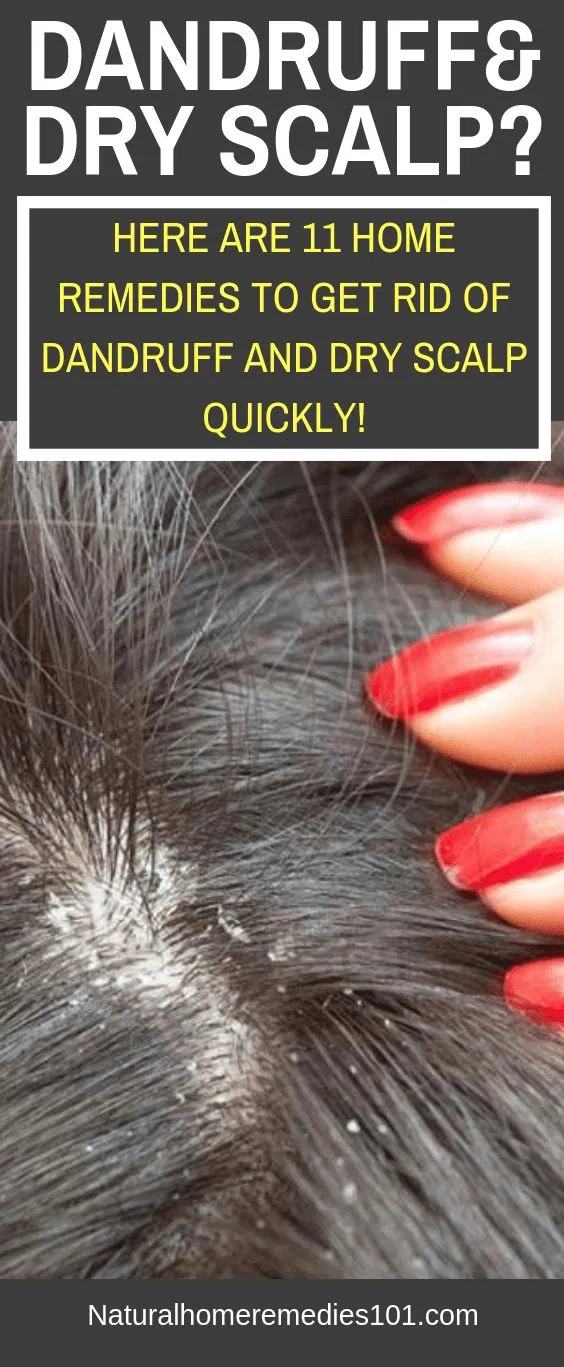 How To Get Rid Of Dandruff Quickly At Home