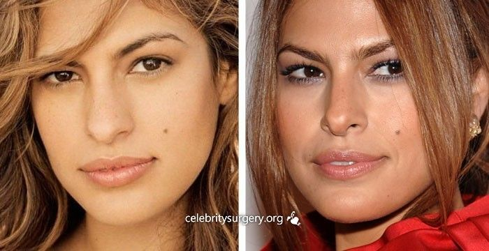 5 Best Celebrity Nose Jobs In Hollywood (Before And After ...