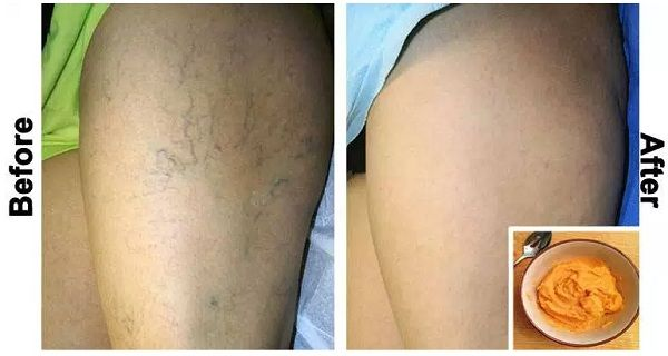 Natural Cures For Varicous Veins In Mens Testicals 107