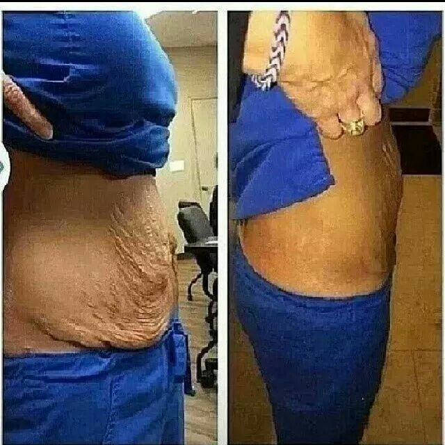 Stomach balloon weight loss canada cost photo 7