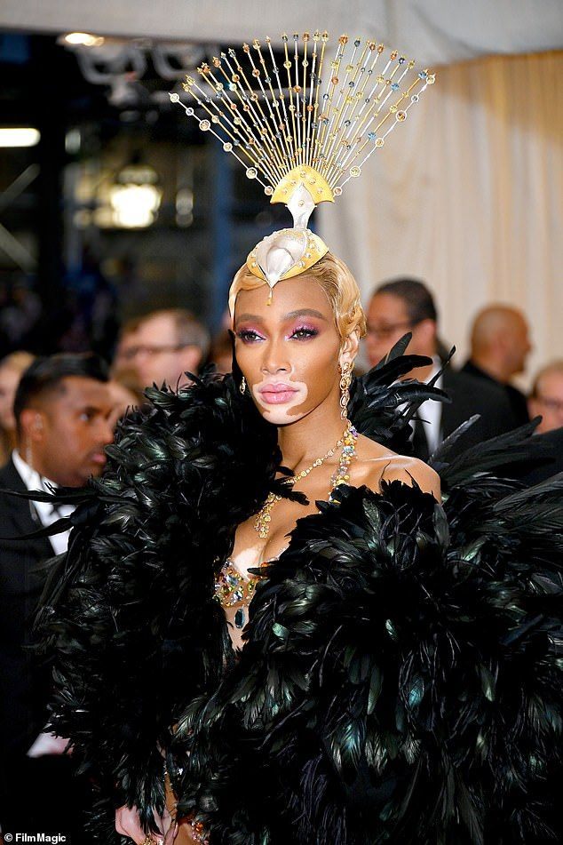 Winnie Harlow Proves Herself To Be Wild At Met Gala After