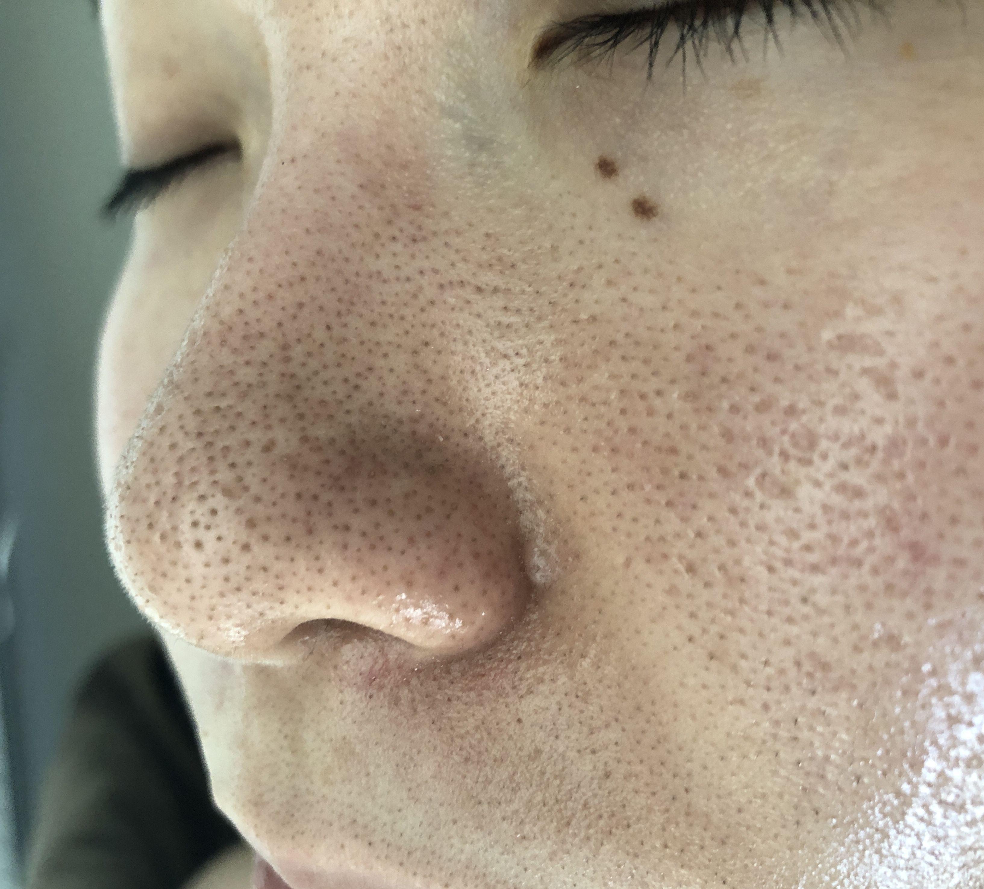 の 汚れ の 鼻 毛穴