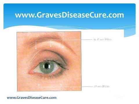 Thyroid Eye Disease And Its Healing Exercises Youtube Thyroid