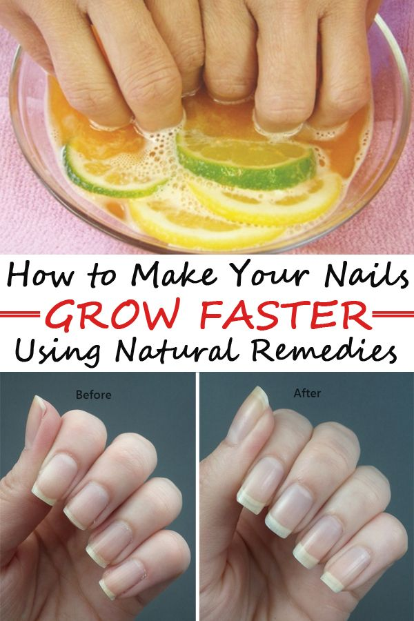 How To Make Your Nails Grow Faster Using Natural Remedies Grow Nails Faster How To Grow Nails Make Nails Grow
