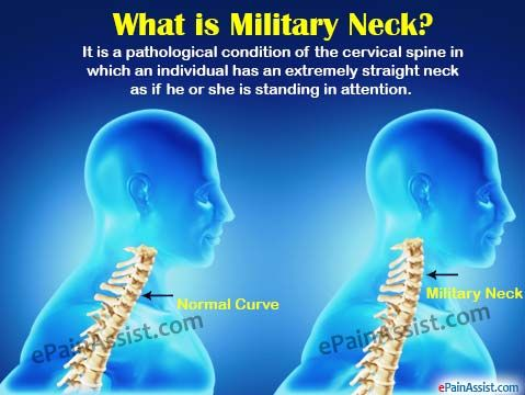 military neck solutions