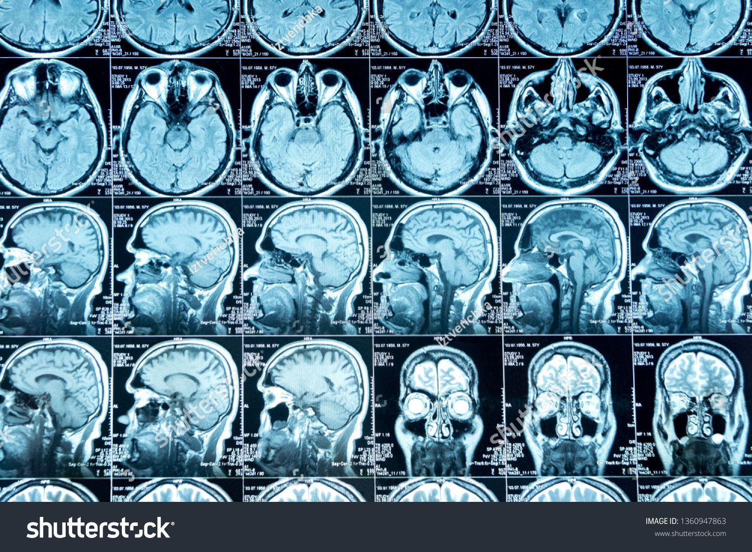 Mri Scan Of The Brain Medical Examination Of The Brain Ad