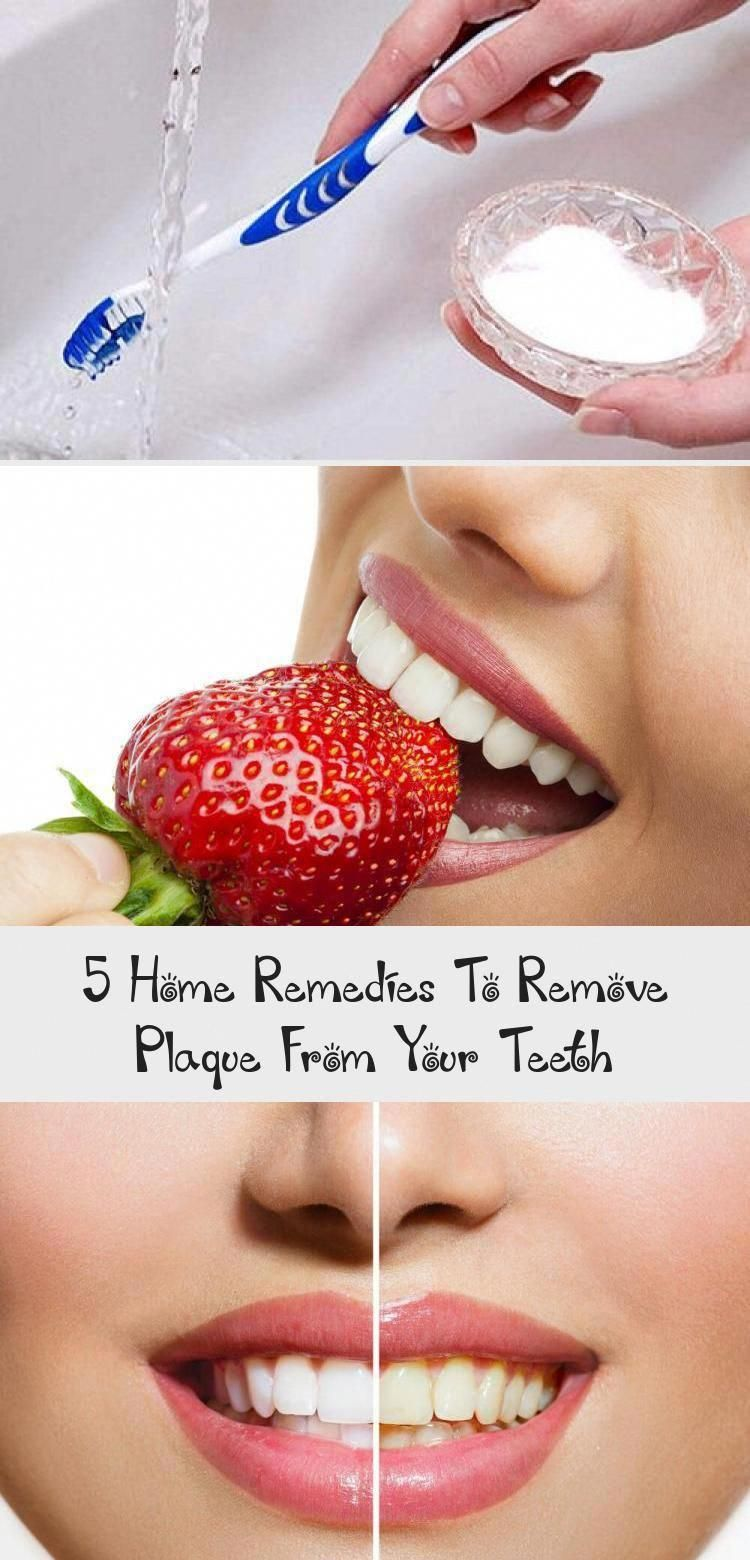 5 Home #Remedies to Remove Plaque from Teeth  Don't waste your money on #aggressive products to remove #plaque and whiten teeth. These 5 all natural remedies will improve your #oral #health and smile. #teethhealtyRoutine #teethhealtyOralHygiene #teethhealtyAtHome #teethhealtyNaturalRemedies #Vitaminsteethhealty #DoOralCare #WhatDoesOralCareMeanToYou