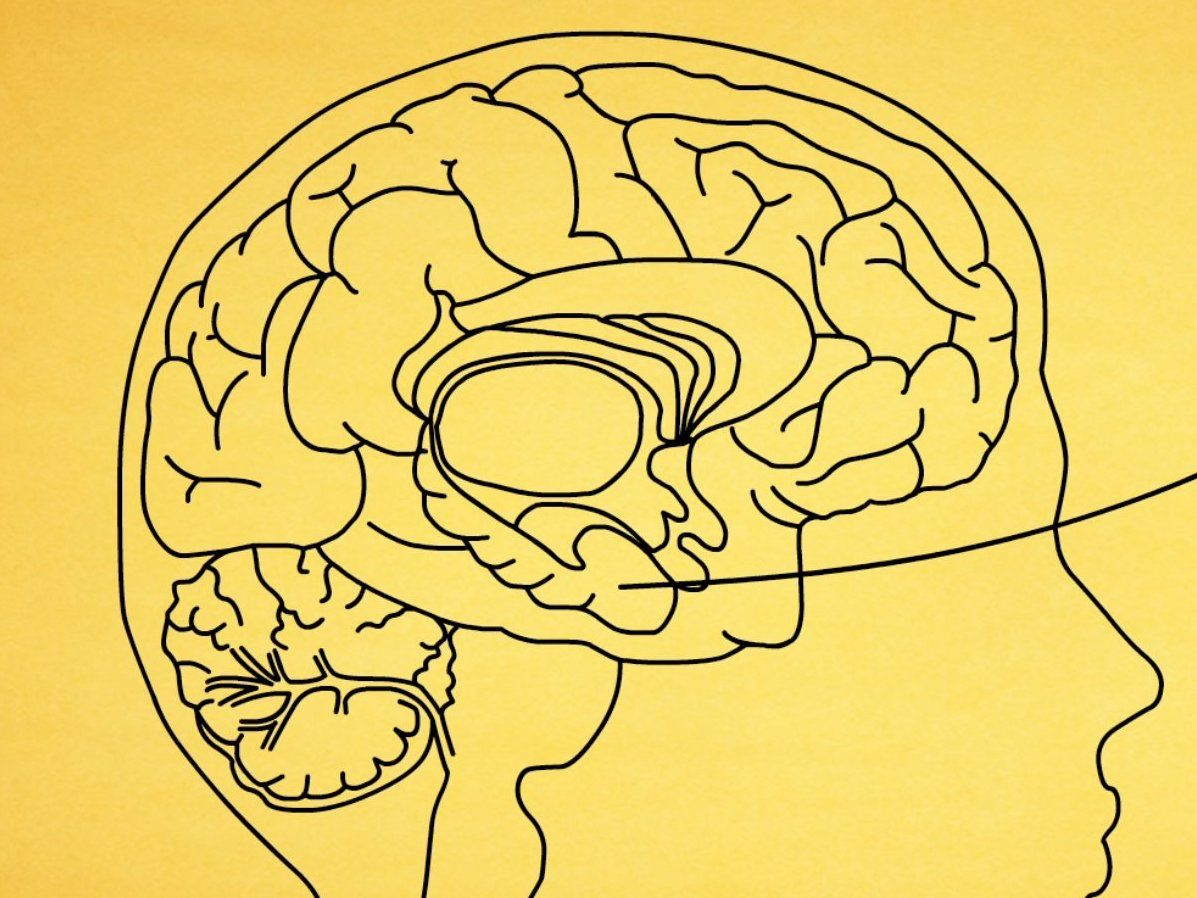This incredible animation breaks down exactly how Alzheimer\'s ...