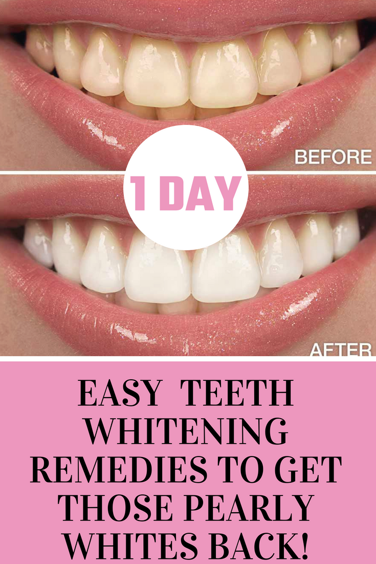 Easy Teeth Whitening Remedies To Get Those Pearly Whites Back 1 Day
