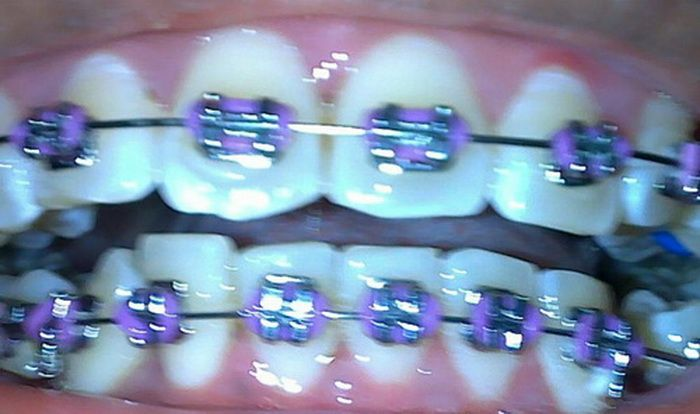 Purple Braces That Amaze Brakets Brackets Aros