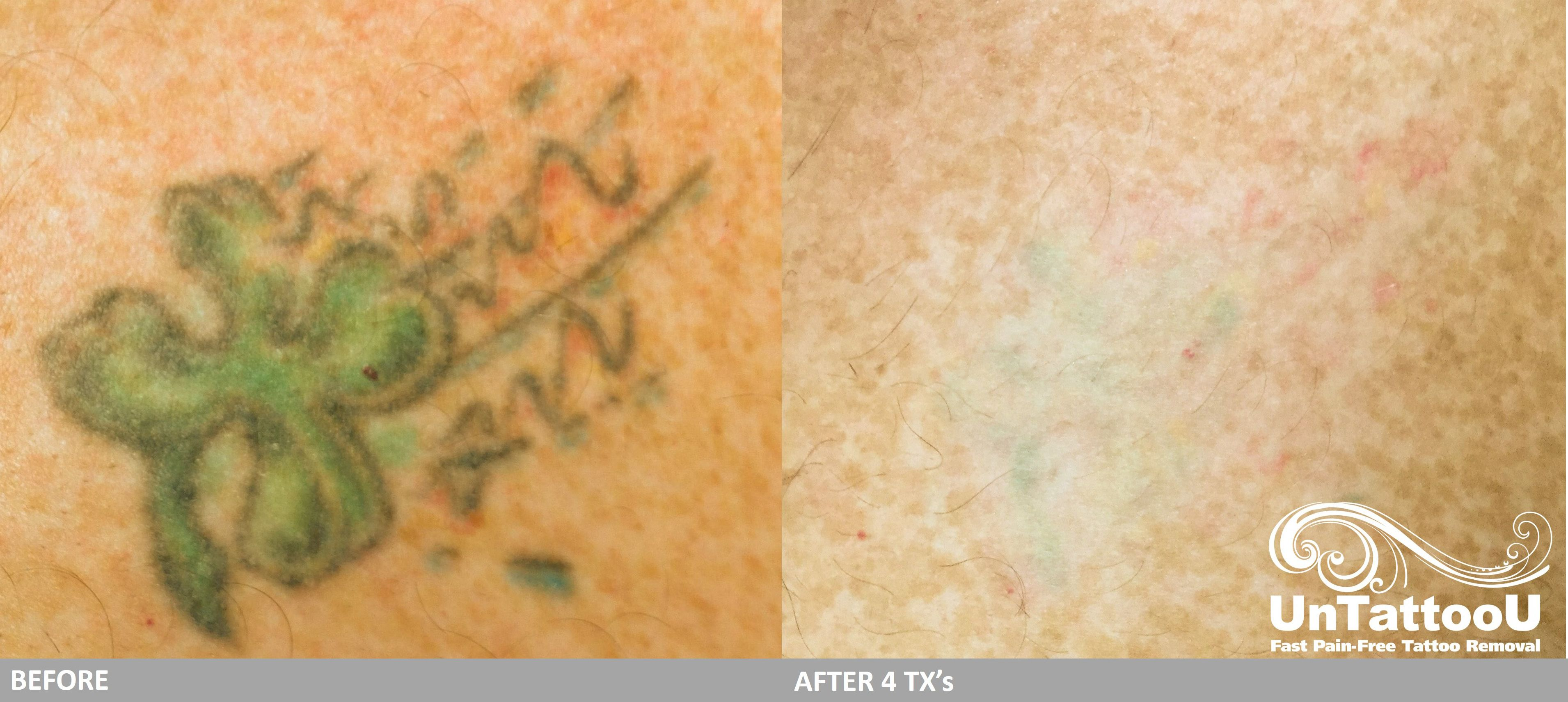 UnTattooU: Laser Tattoo Removal: Before & After 4 Treatments ...