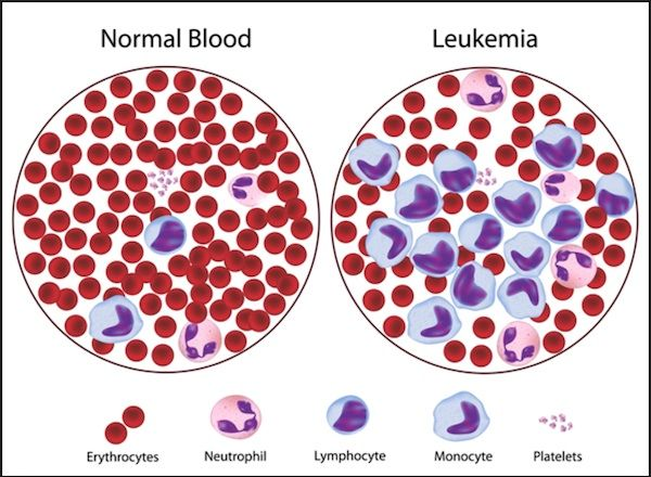 Some Key Facts About Leukemia, Causes, Symptoms, Types | Key ...