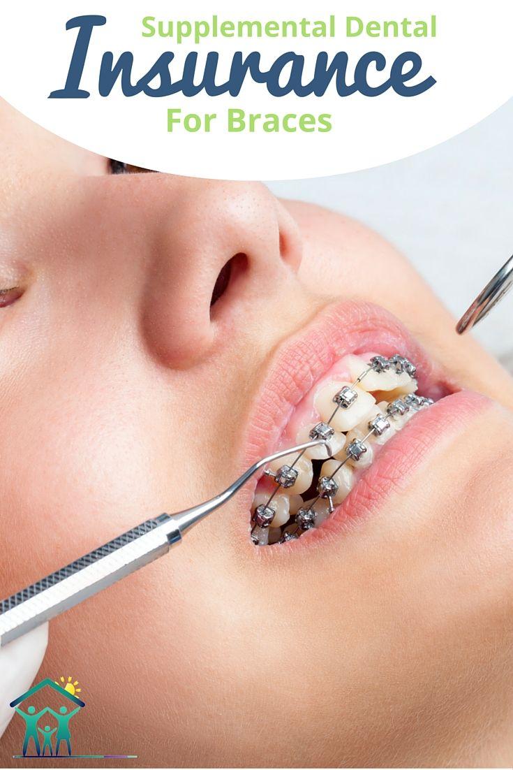 Supplemental Orthodontic Insurance For Adults Children Dental
