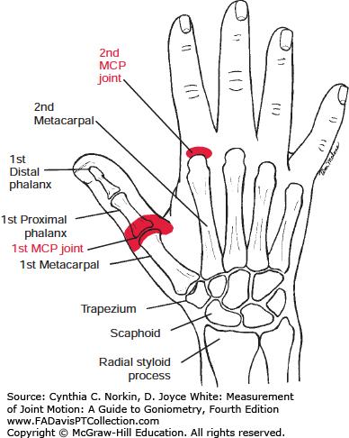 Image result for metacarpophalangeal joint | Anatomy | Pinterest