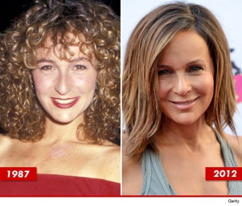 Before after plastic surgery gone wrong facelift gone