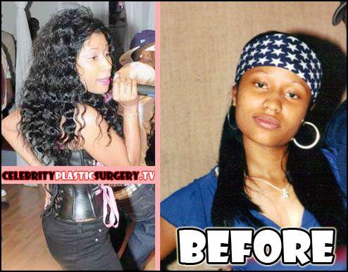 Nicki Minaj Before Plastic Surgery And Booty Implants