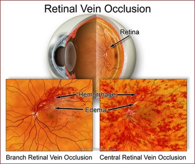 central retinal artery occlusion vs central retinal vein ...