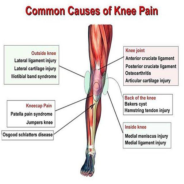 Common causes of knee pain kneepain knee mdub for Exterior knee pain