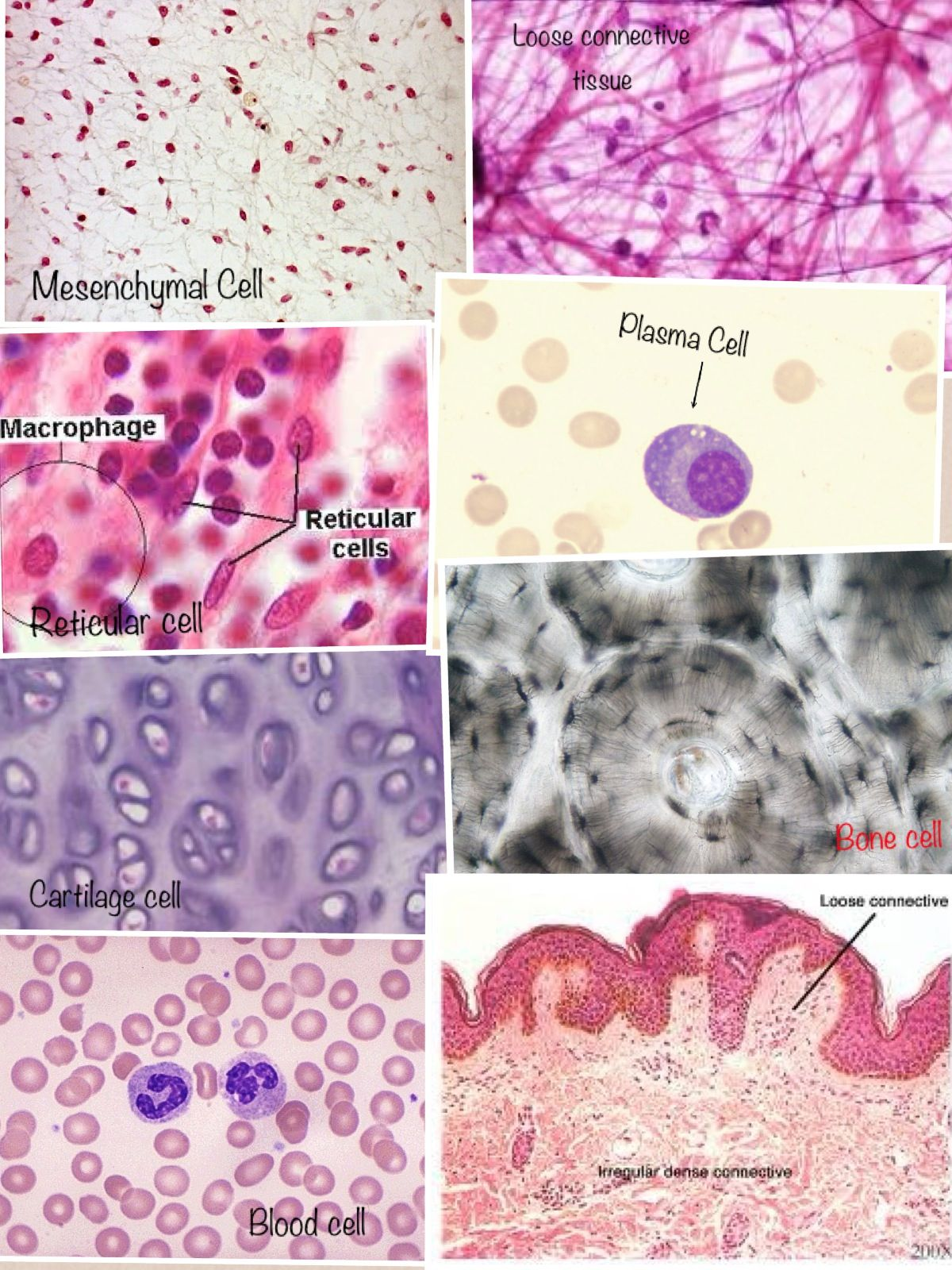 Some Cells From Our Connective Tissue Just Annoying