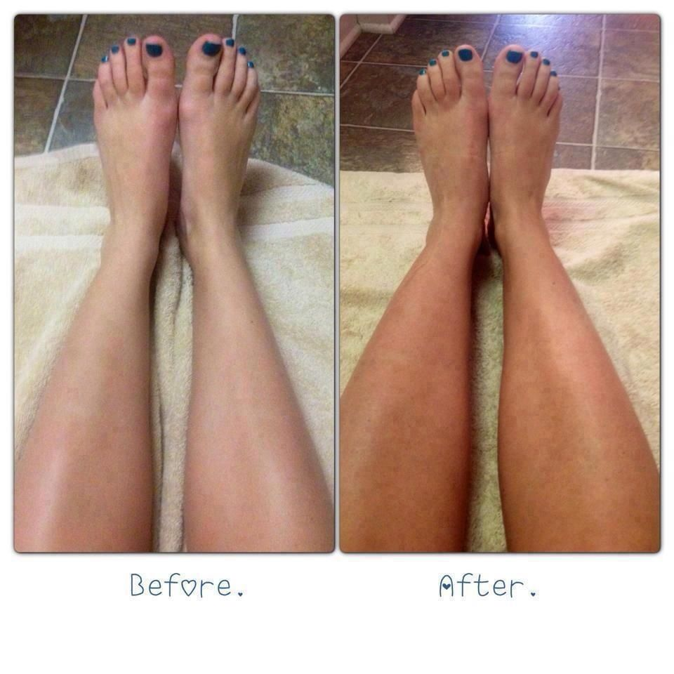 Before And After, Rodan + Fields Foaming Sunless Tan No Streaks,