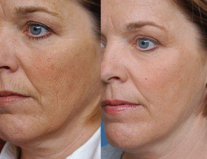 Co2 Ipixel Skin Resurfacing Health Aesthetics Surrey Skin Resurfacing Laser Skin Resurfacing Laser Skin