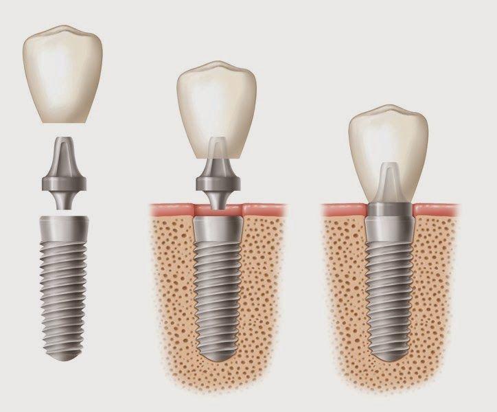 Could Nanotechnology Revolutionize Dental Implant Technology Nanotechnology Will Impact Nearly Every Asp Teeth Implants Best Dental Implants Dental Implants