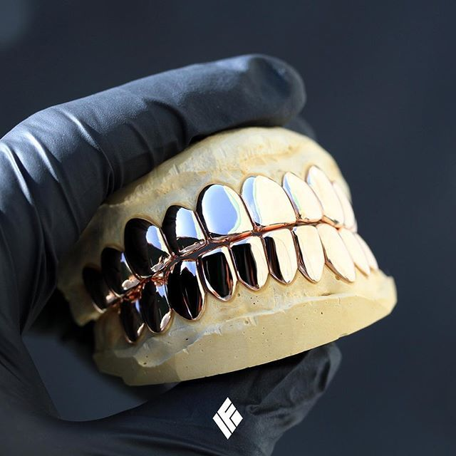 Solid 14k Rose Gold Top 10 And Bottom 10 Grills Custom Made For Xinamra0j Grillz Customjewelry Ifandco Gold Grillz Grillz Grillz Teeth