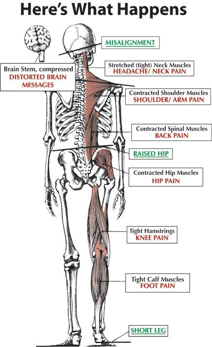 Pin On Healthy Spine Healthy Structure
