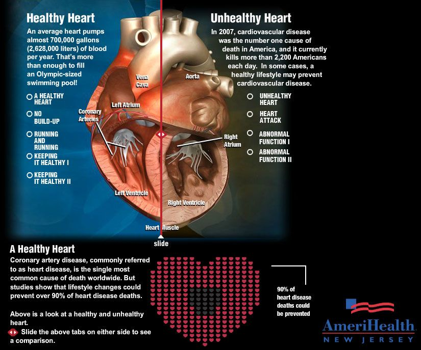 Amerihealth Interactive Infographic Healthy Vs Unhealthy Heart