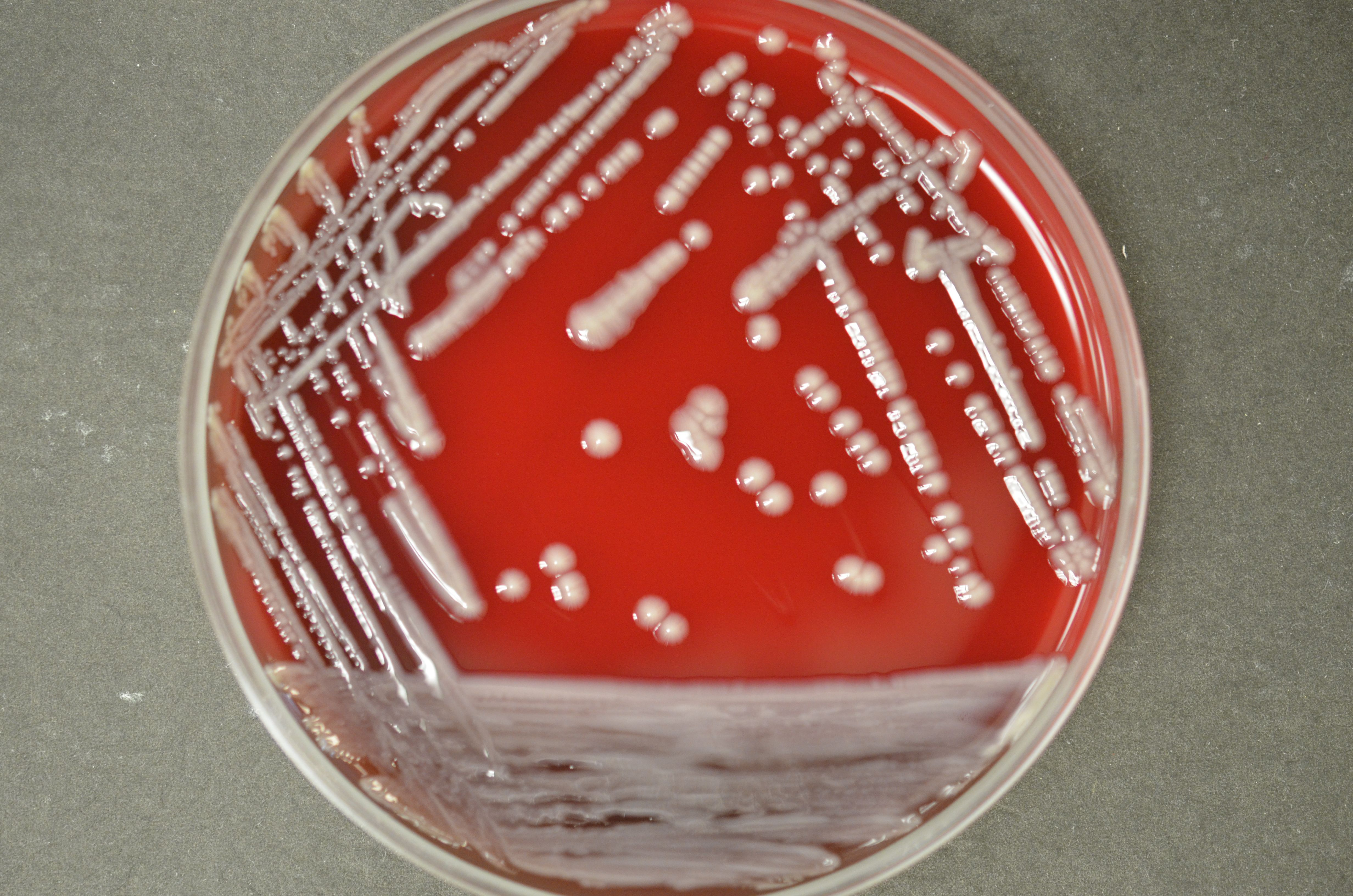 Klebsiella Oxytoca In Stool Culture Klebsiella Sp Germs