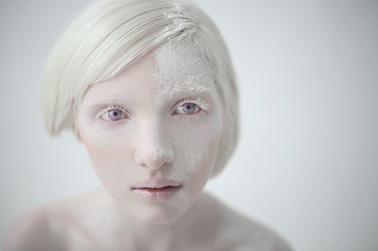Nude albino girls